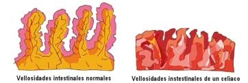 vellosidades-intestinales