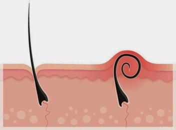 foliculitis-que-es-y-que-lo-causa-20120418085651-4fa70da14e88a83145f8d57962bd6594