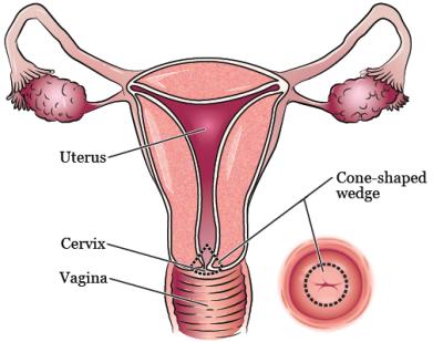 cone_biopsy-fig_1-en